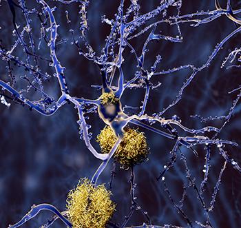 Prévenir la maladie d'Alzheimer
