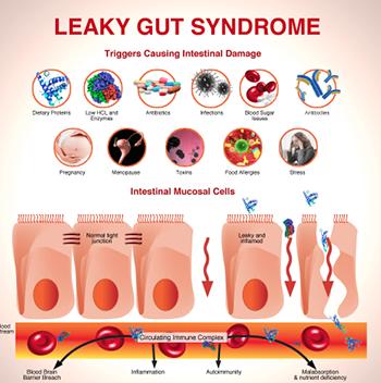 Prévenir et soulager l'intestin poreux (Leaky gut)