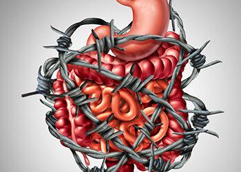 Prévenir le syndrome du colon irritable